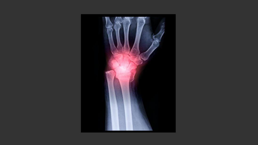 Virtuele en werkelijke polscorrecties - Betere diagnose en behandeling met 3D en 4D beeldvorming