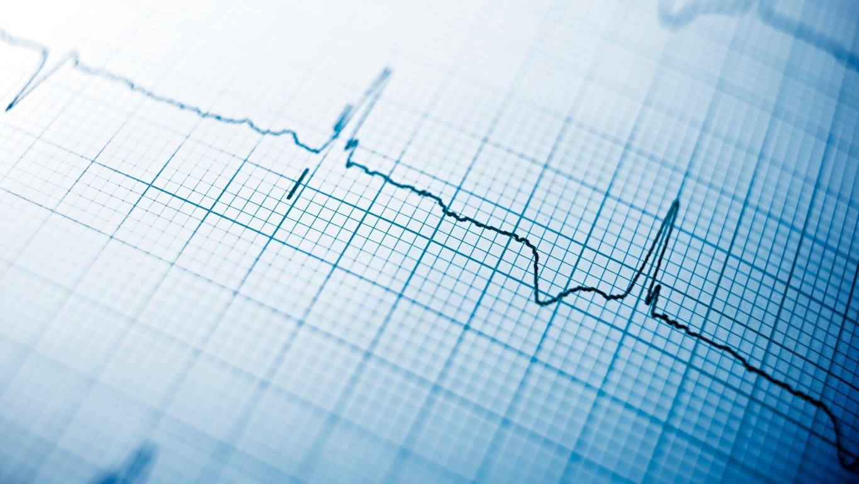 Snel een ECG, zonder elektrodes plakken