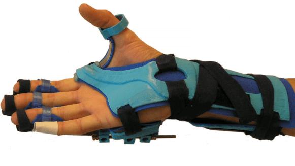 Een functionele hand orthese met behulp van 3D printen