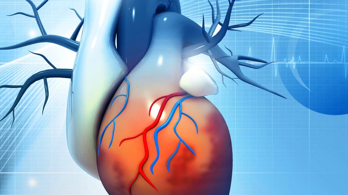 Ischemisch coronairlijden: vooral bij vrouwen een non-obstructief probleem?