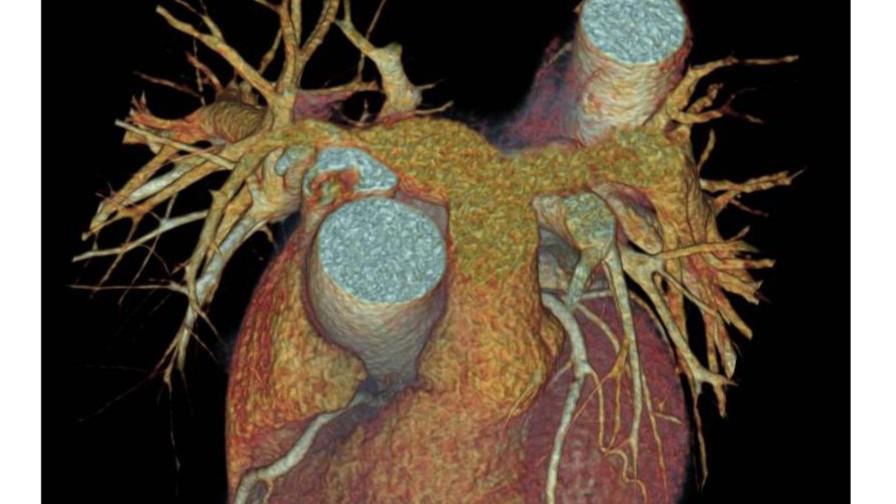 Nieuwste ontwikkelingen op gebied van Computer Tomografie