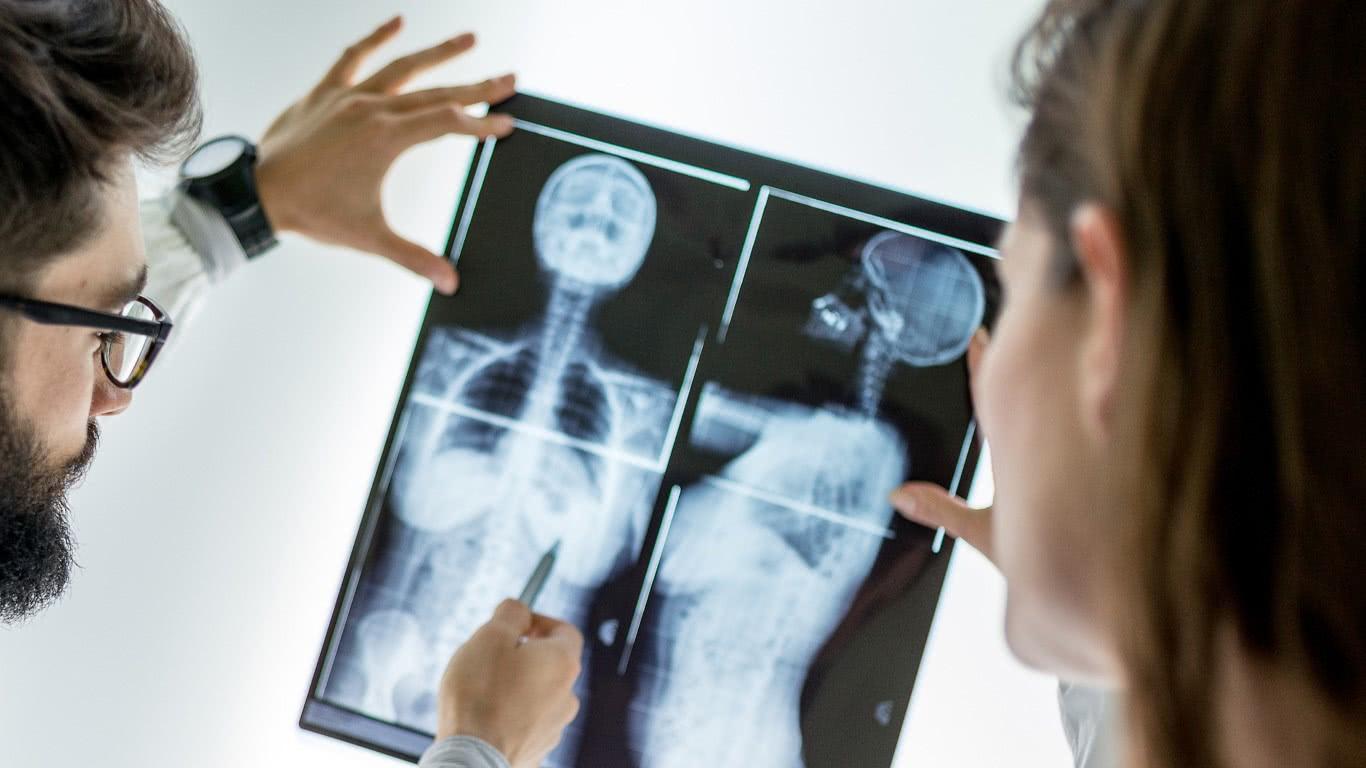Beeldkwaliteitsmetingen van digitale röntgensystemen
