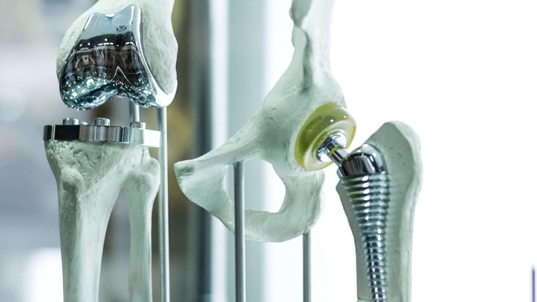 Medische implantaten continu te volgen door koppeling