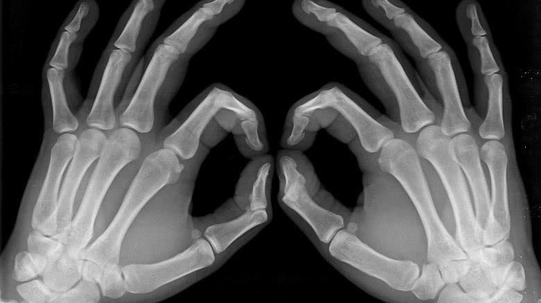 WAD  protocollen: een praktisch handvat voor kwaliteitsmetingen bij diagnostische apparatuur
