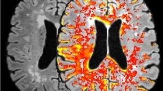 Beter begrip van hoe het brein geluiden registreert