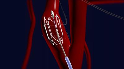 Implantaat zorgt voor forse daling hoge bloeddruk