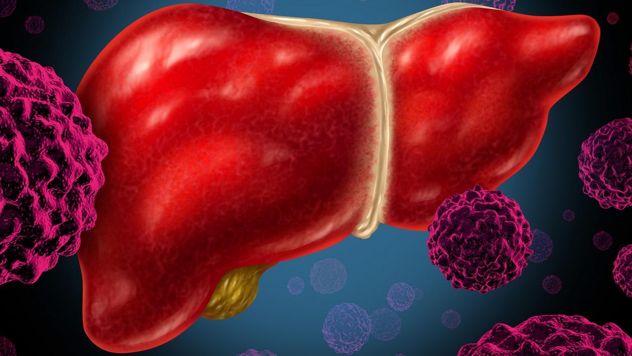 Holmium embolisatie tegen uitgezaaide leverkanker