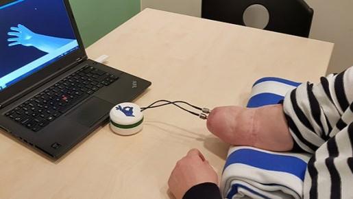 Eerste sensitieve handprothese geïmplanteerd
