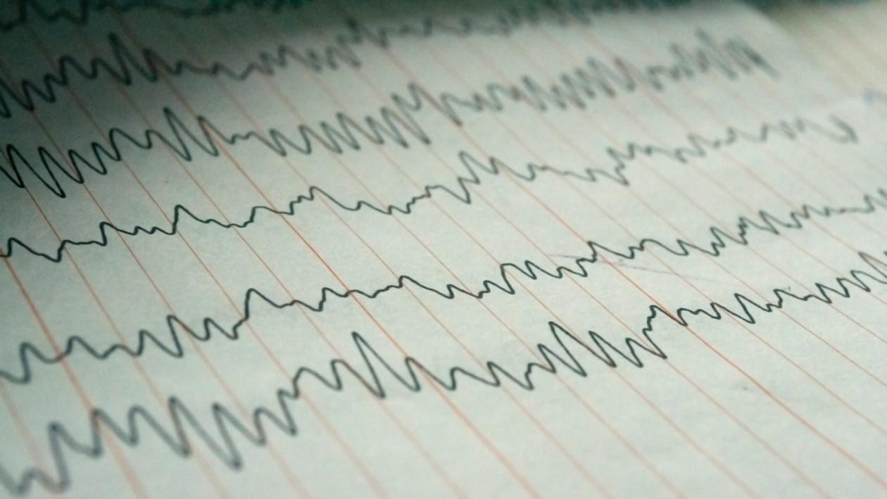 Depressie-behandeling met electroshock maakt nieuwe zenuwcellen aan