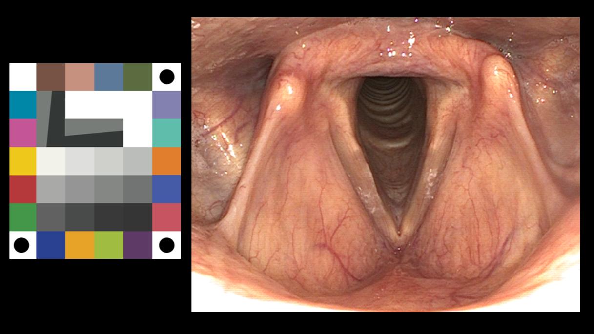 Meten aan beeldkwaliteit van chip-on-tip KNO endoscopen