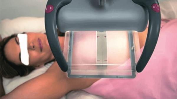 3D Echo-Mammografie: een veelbelovende nieuwe techniek